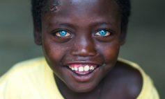 Mavi gözlü Afrikalı oğlanın sirri məlum oldu